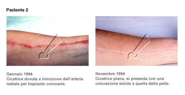 Cicatrici - paziente 2