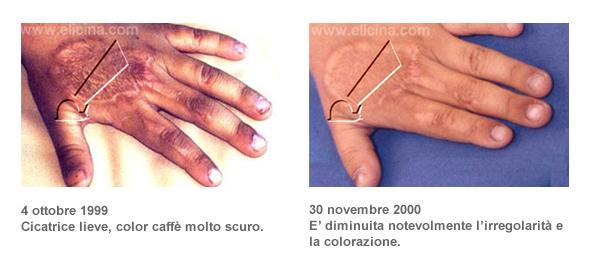 ustioni-cile-02