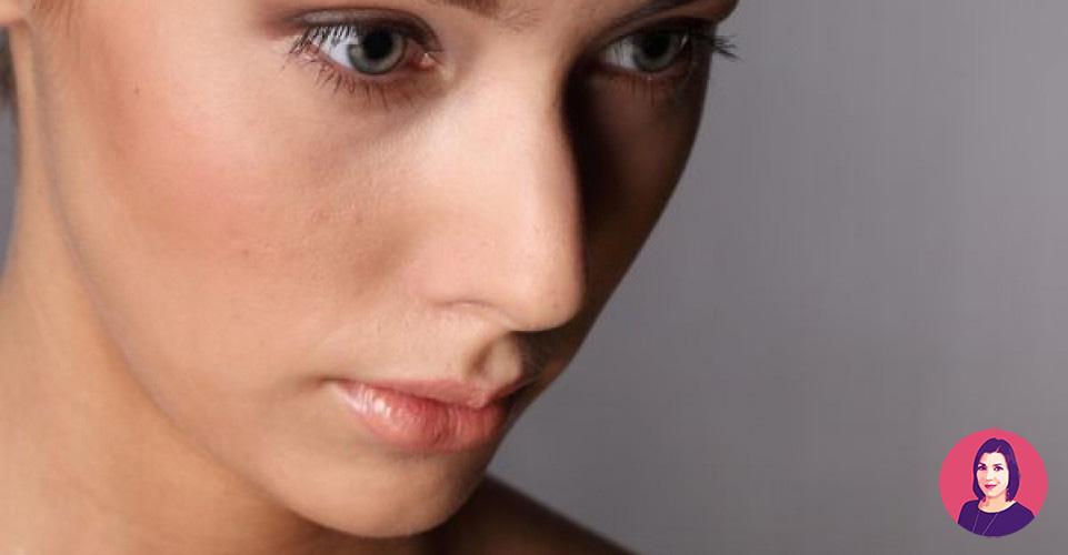 macchie della pelle laser