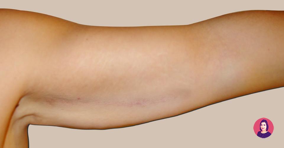 cicatrice lifting braccia