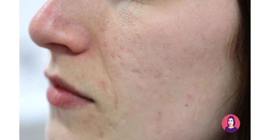 eliminare segni dell'acne