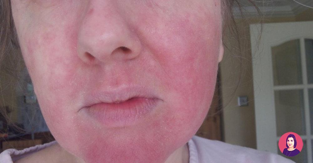 allergia benzoil perossido