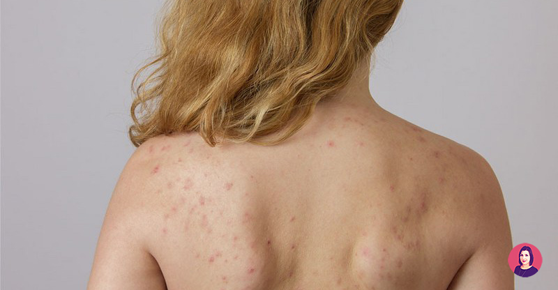 brufoli schiena acne crema
