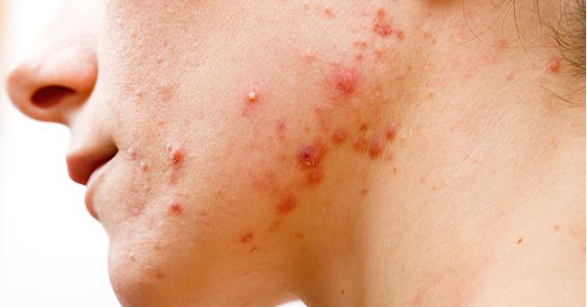 segni dell'acne