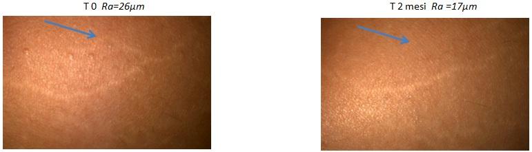 Smagliature all'inizio, e dopo 2 mesi di trattamento con Elicina crema.