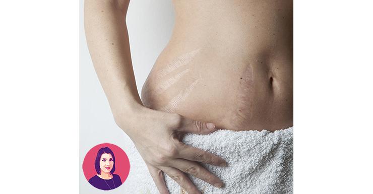 smagliature post gravidanza
