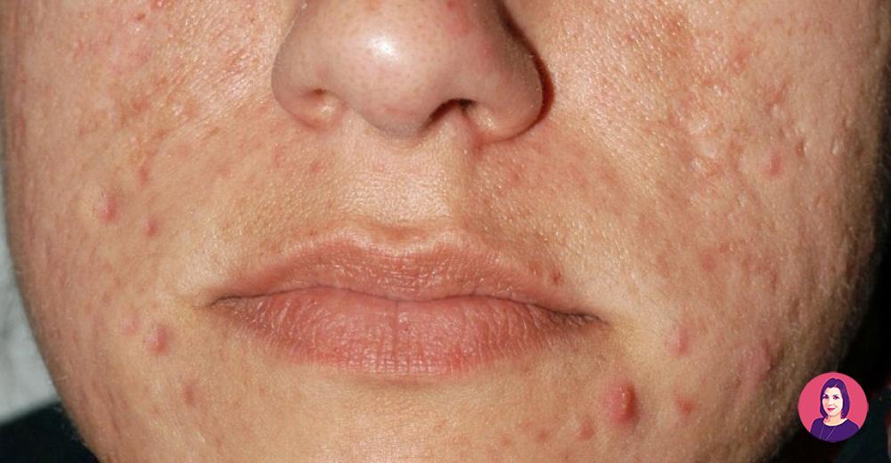 cicatrici buchi varicella