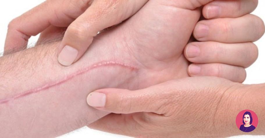 cicatrici da taglio