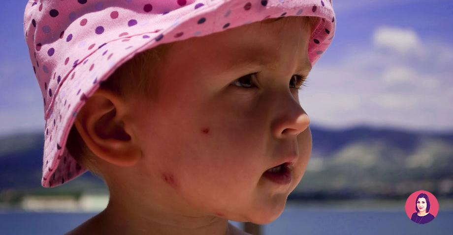 cicatrici da punture di zanzare