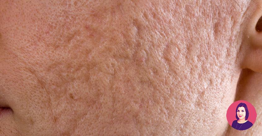 cicatrici acne